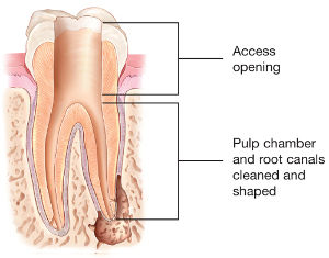 ESG - Root Canal Access Opening