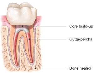 ESG - Root Canal Healed