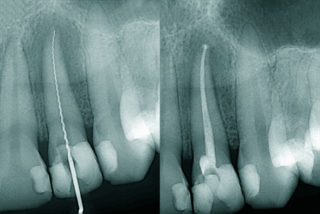 ESG - Before and after Endo treatment Dental X-ray